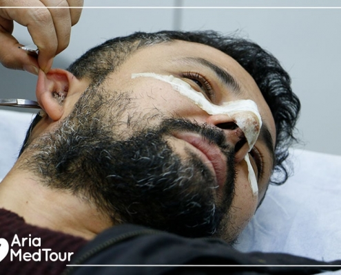 syrian kurdish danish patient having revision rhinoplasty with cartilage graft from the ear in Iran