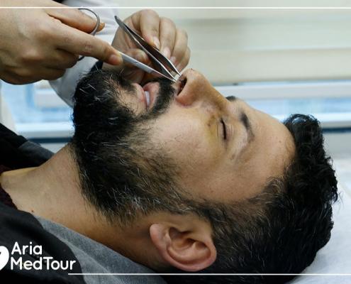 syrian kurdish danish patient after revision rhinoplasty in Iran