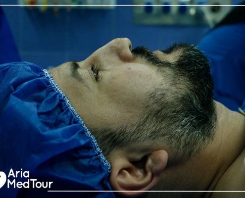 syrian kurdish patient having revision rhinoplasty in Iran
