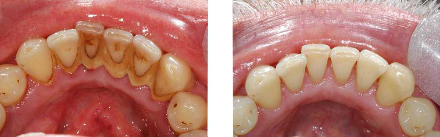 results of dental scaling and root planing in Iran
