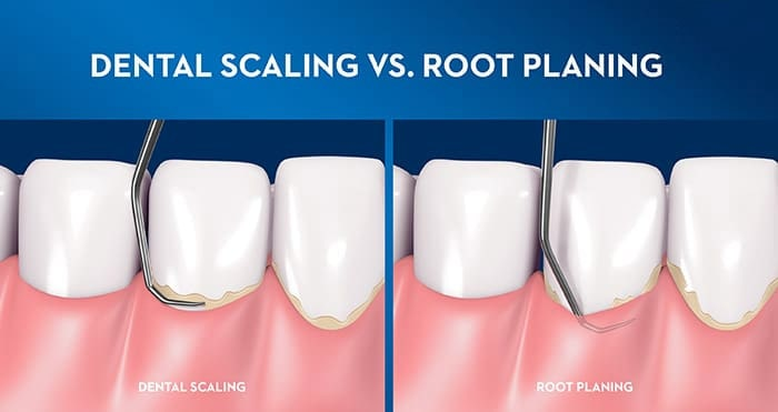 comparison between dental scaling and root planing