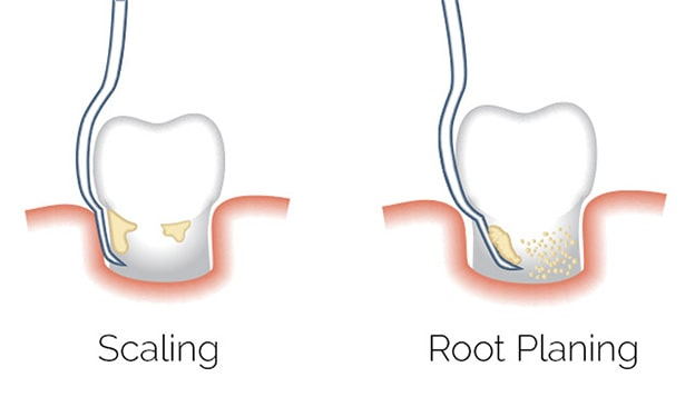 dental scaling and root planing explained