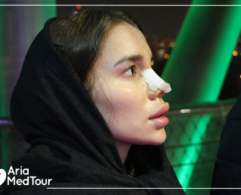 Russian patient satisfaction or nose job in Iran