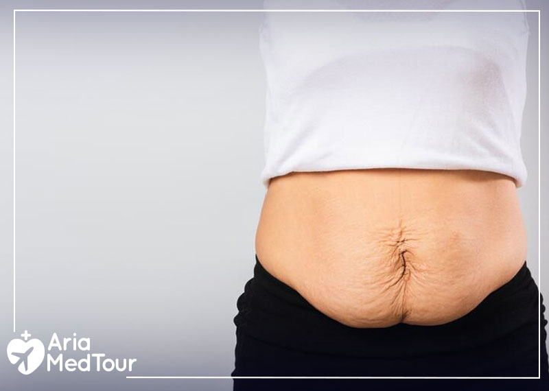 a woman's stretched stomach skin due to her pregnancy after tummy tuck abdominoplasty