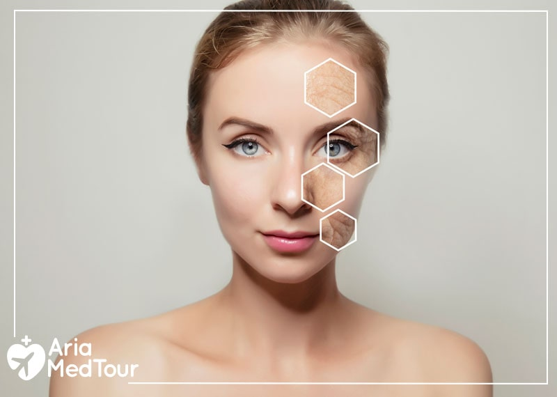 Botox and dermal fillers results on a woman's face in her 20s