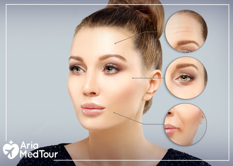Botox and dermal fillers results on a woman's face in her 30s
