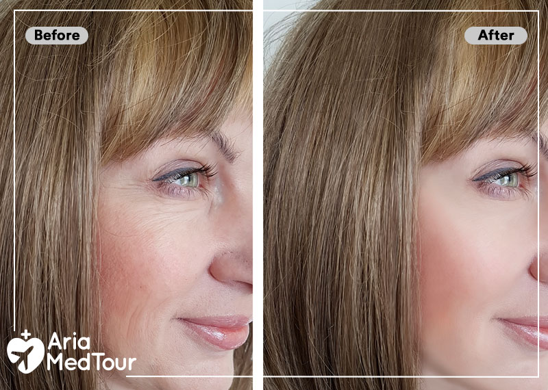 before and after results of Botox and fillers injection