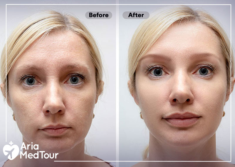 before and after result of Botox and fillers injection