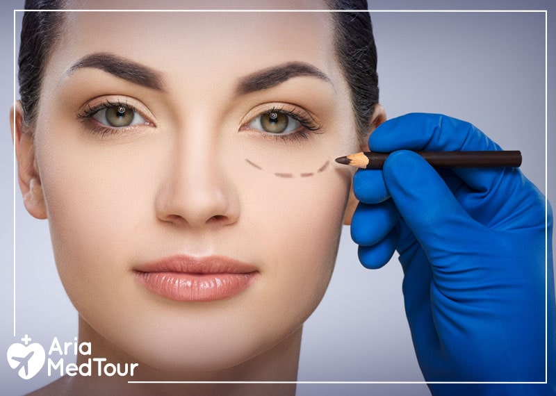 a woman and her eyelids being prepared for her eyelid surgery