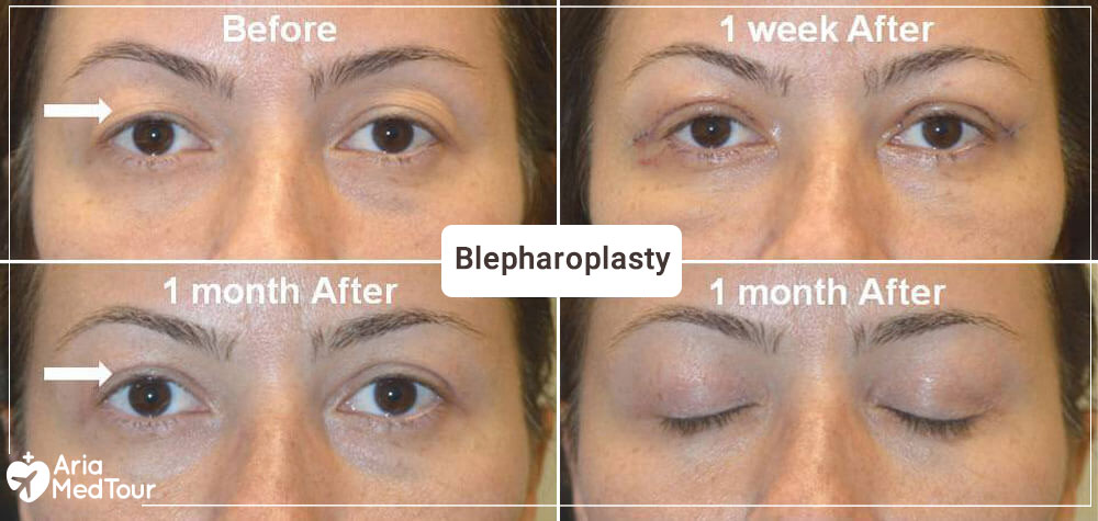 a woman blepharoplasty results, one week and one month after her eyelid surgery
