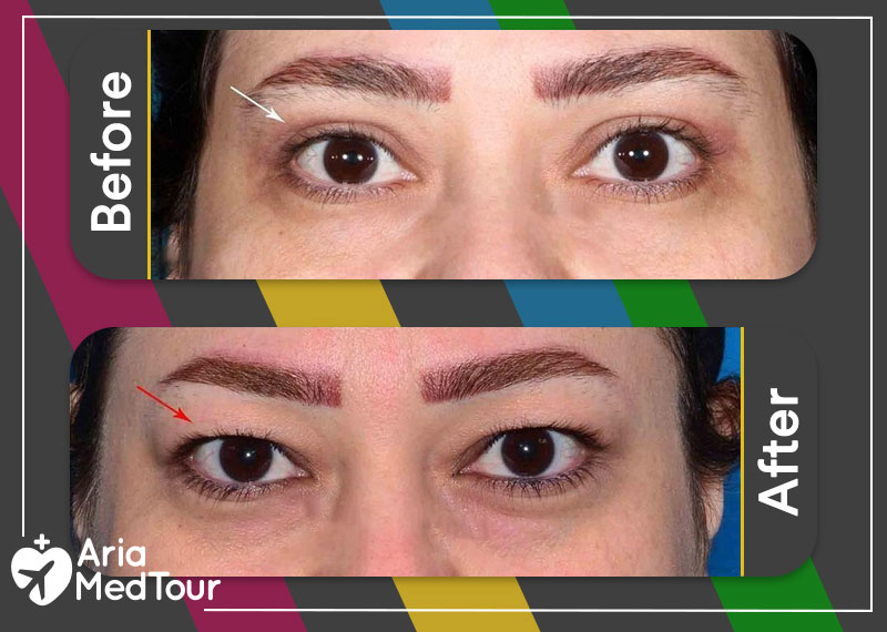 eyelid surgery before and after blepharoplasty
