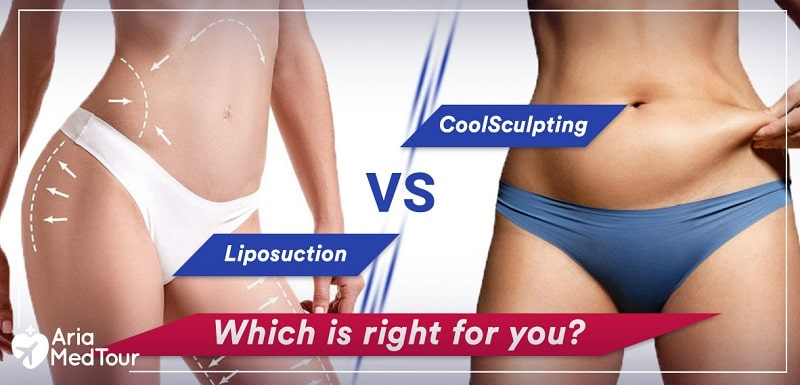 coolsculpting vs liposuction which is right for me?