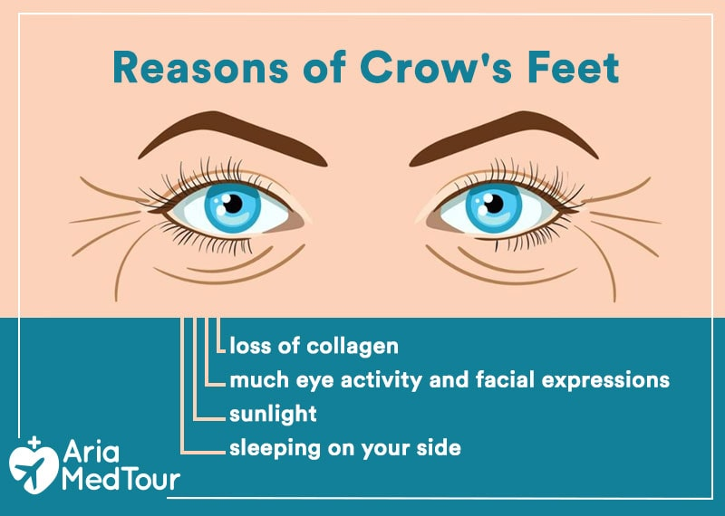 an infographic showing the reasons and causes of crow's feet