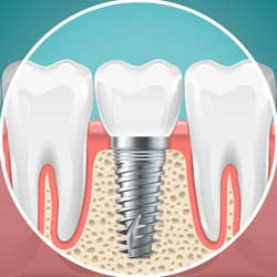 Dental Implant Recovery Guide
