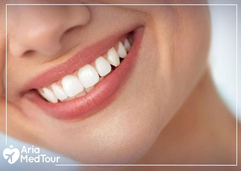 a woman teeth after dental implants