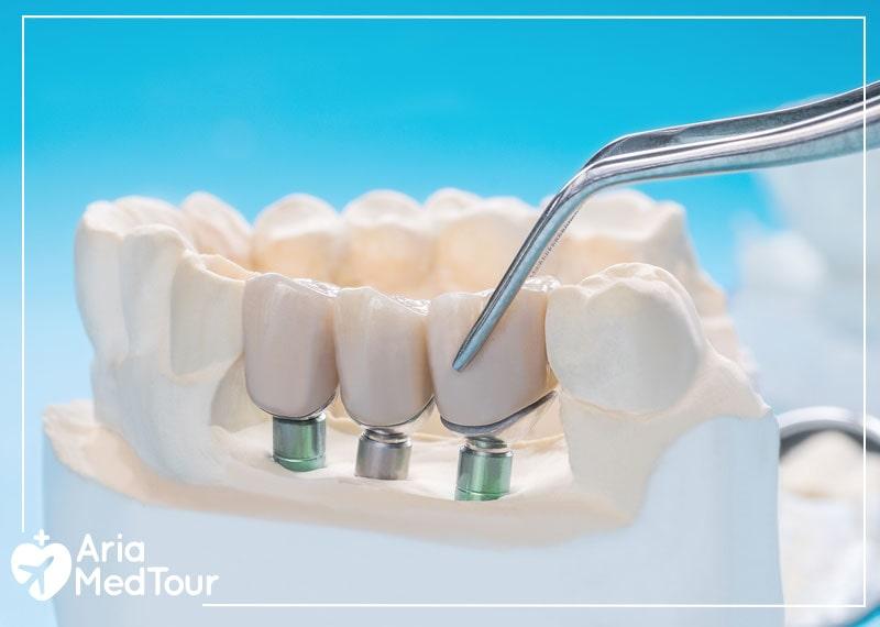 Practicing good oral hygiene after dental implants