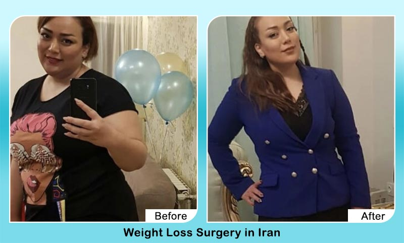 Dr Mehdi Yamini gastric balloon before and after photo