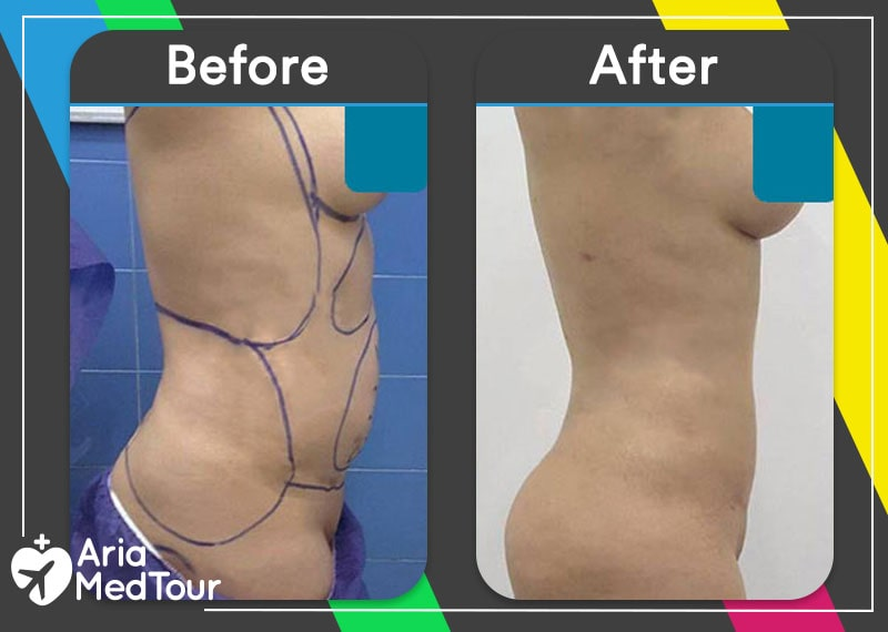 liposuction before and after result photo