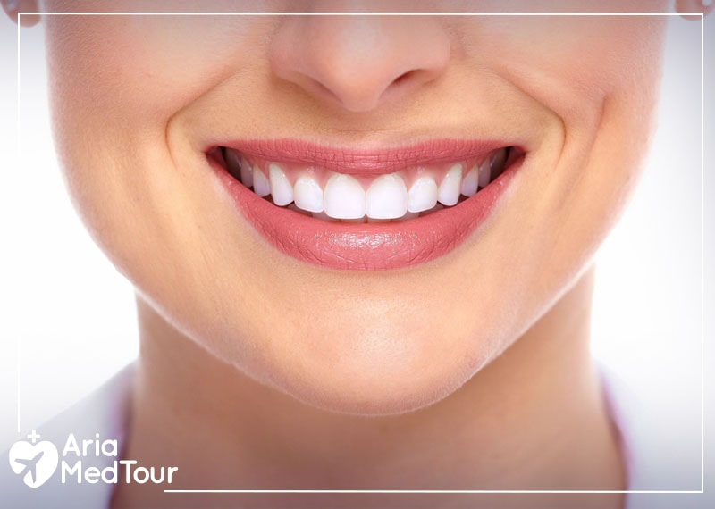 a woman's teeth after dental veneers and laminate