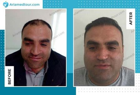 Iran hair transplant before after photo