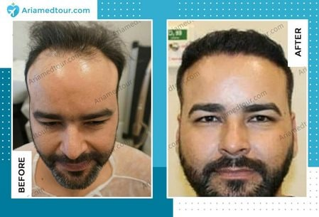 hair transplant before after photo Iran