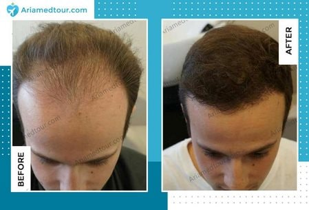 hair transplant before after photo
