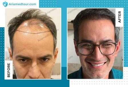 hair transplant before after Iran