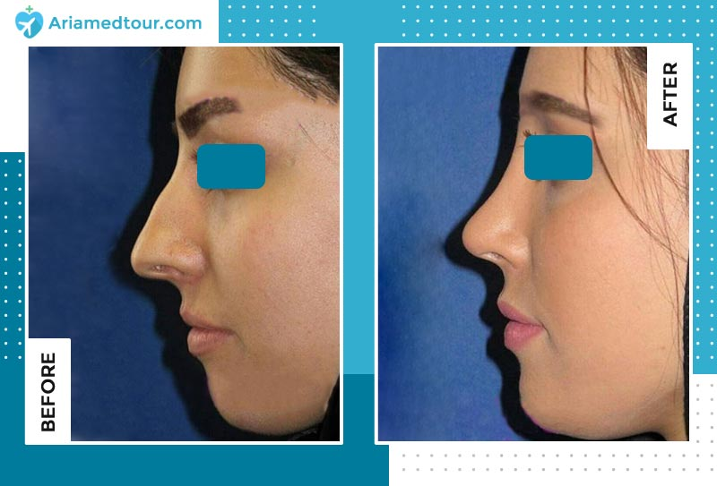 nose job before after photo by dr. Farzan Rezaei