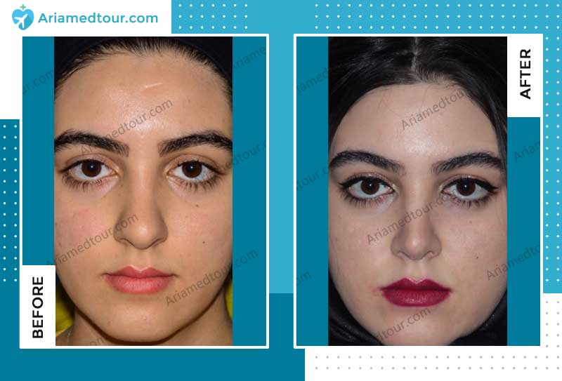 rhinoplasty before after by Dr. Alireza Mohebbi