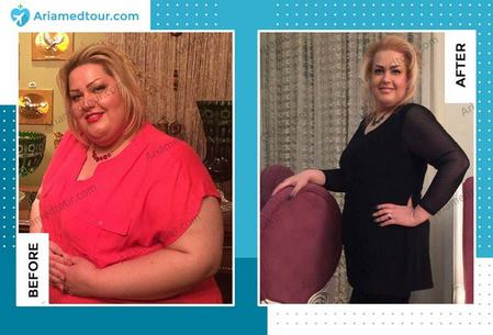 Iran weight loss surgery before and after photo