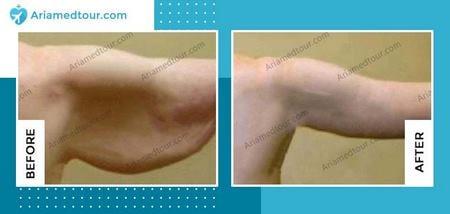 brachioplasty before after photo in iran