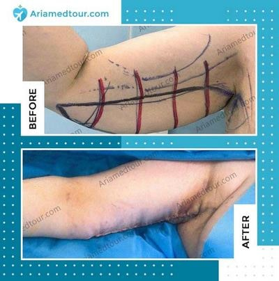 brachioplasty arm lift before after photo in iran