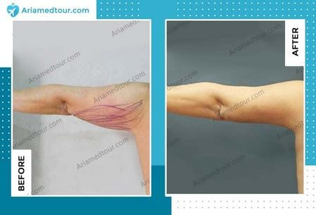 arm lift before after photo