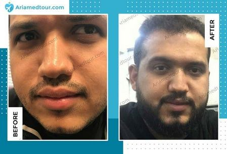 beard transplant in Iran before after photo