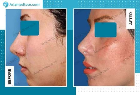 cheek augmentation before and after in Iran