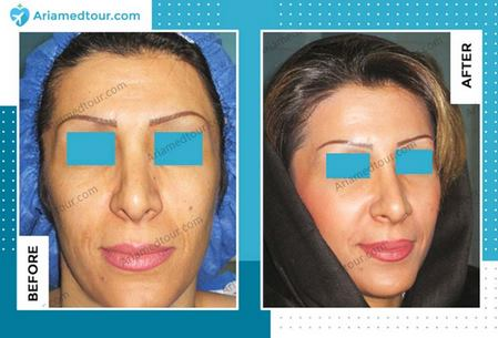 cheek augmentation in Iran before after