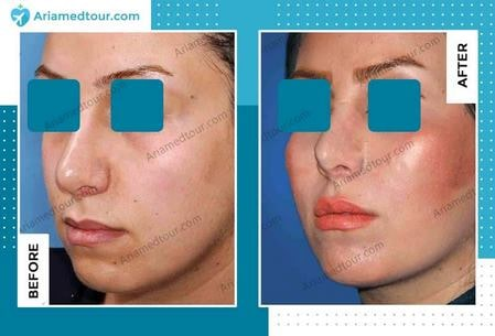 cheek augmentation surgery in Iran before after