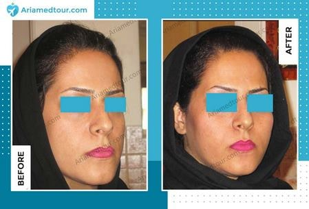 cheek augmentation surgery before after in Iran