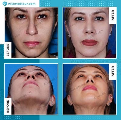 chin augmentation before after in Iran