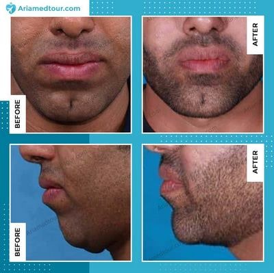 chin augmentation surgery before after in Iran
