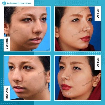 chin augmentation before after photo in Iran