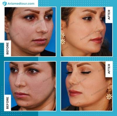 chin augmentation in Iran before after