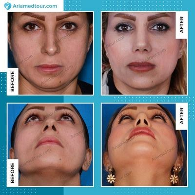 Iran chin augmentation before after photo