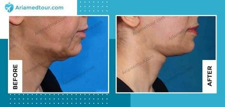 double chin surgery in Iran before and after