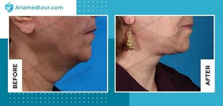 chin fat removal in iran before and after