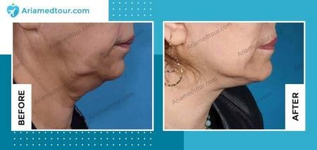 double chin surgery before and after in Iran