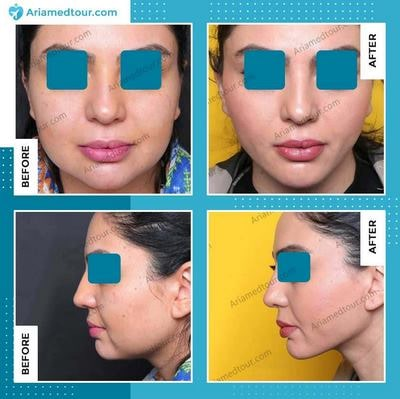 chin surgery in iran before and after