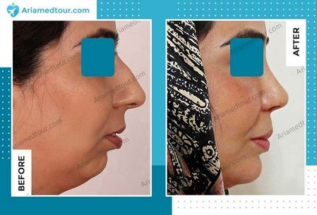 double chin surgery before and after photo