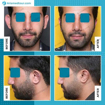 ear surgery (otoplasty) before after photo in Iran