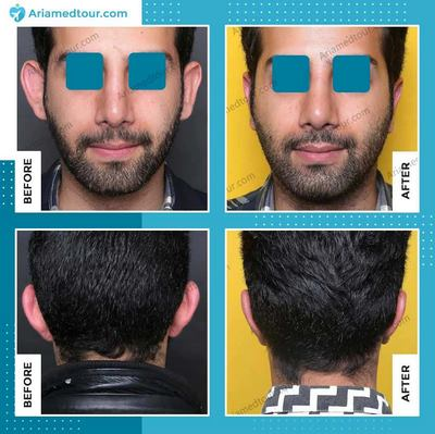 ear surgery before after photo in Iran